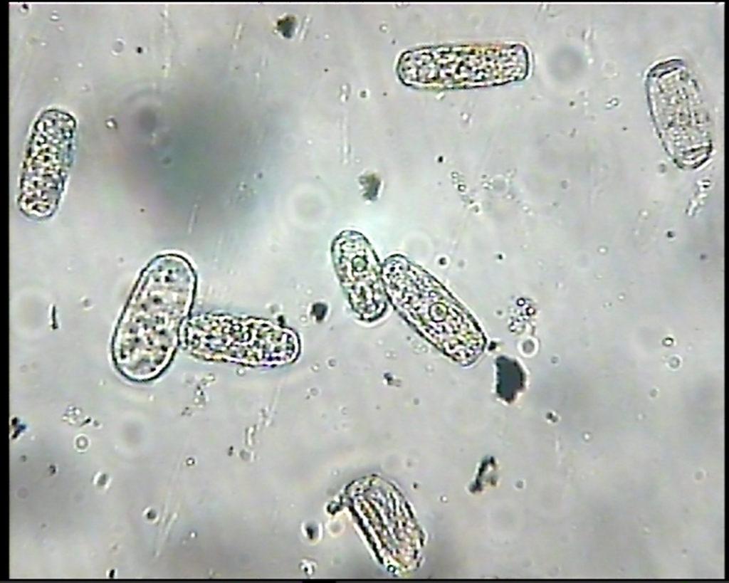 Споры грибов Erysiphe cichoracearum под микроскопом